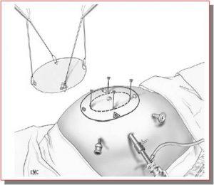 fase-tecnica-laparoscopica